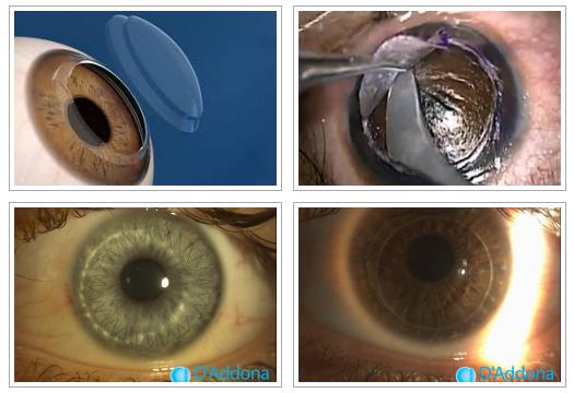 Post trapianto corneale