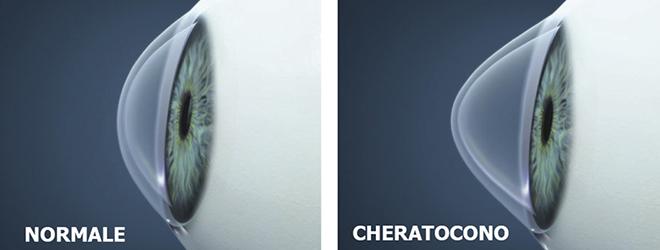 cheratocono2