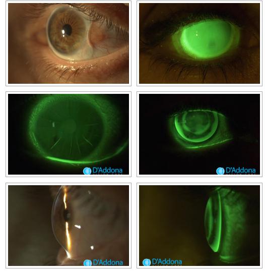 Immagini Cheratotomia radiale