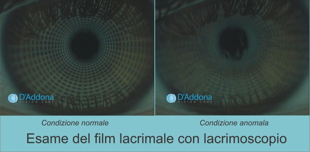lacrimoscopio