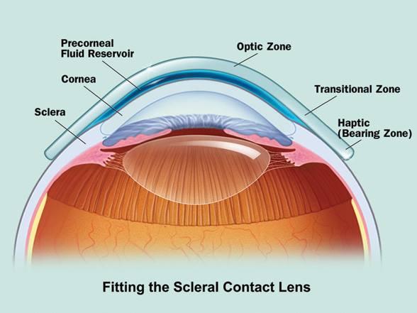 schema che raffigura una lente a contatto sclerale