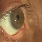 lente Minisclerale applicata su cornea sottoposta a trapianto corneale. Visus senza lac 1/10 con lac 10/10
