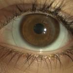 lente Minisclerale applicata su cornea sottoposta a trapianto corneale. Visus senza lac 3/10 con lac 12/10
